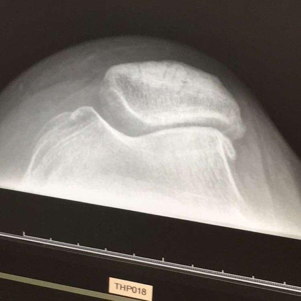 bad knee.jpg